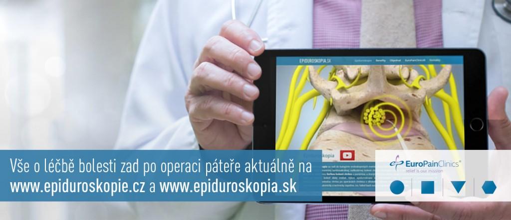 epiduroskopia
